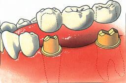 Tandheelkundige brug